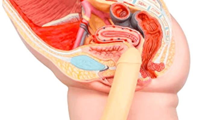 pene in vagina